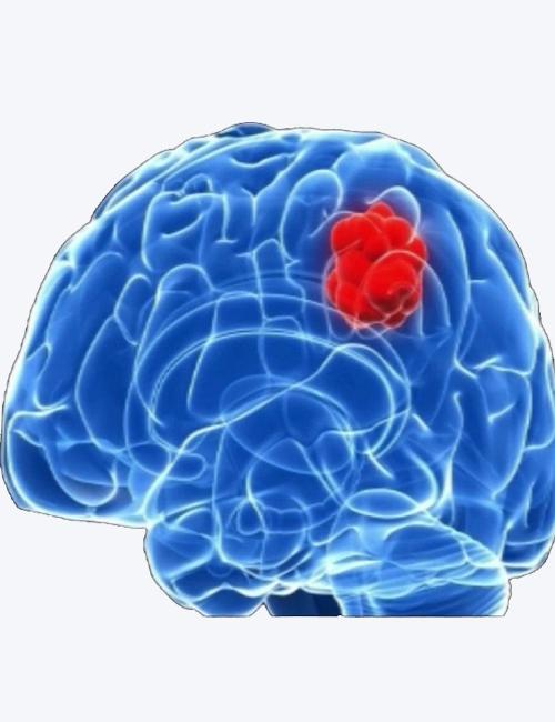 brain-hemorrhage