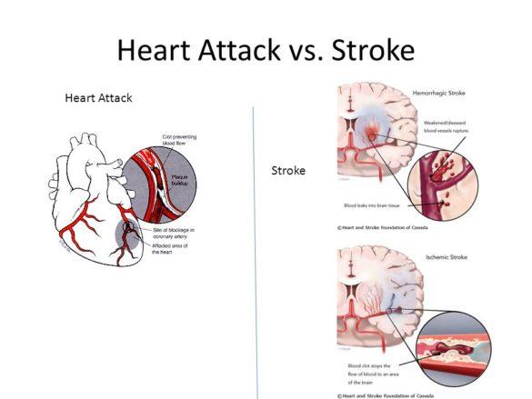 Stroke Vs Heart Attack
